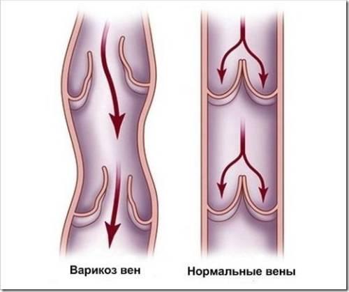 Лечение варикоза самостоятельно