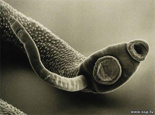 настой от паразитов в кишечнике