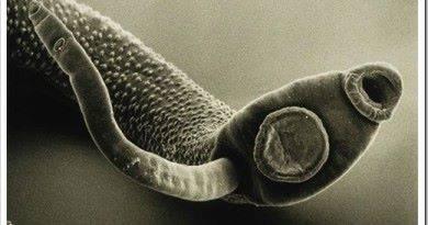 Народные средства в избавлении от паразитов