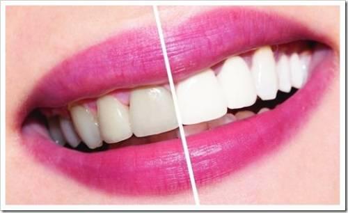 Реставрационное отбеливание зубов - результат