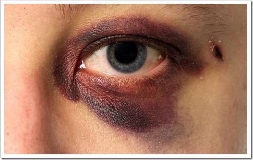 Синяки под глазами проходят значительно дольше, чем в любой другой части тела
