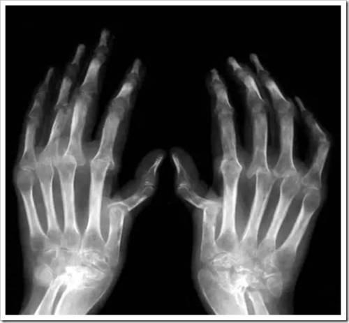 Классическая терапия при лечении ревматоидного артрита