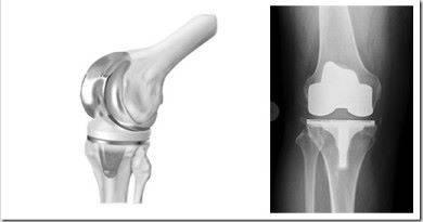 Операция по эндопротезированию коленного сустава.