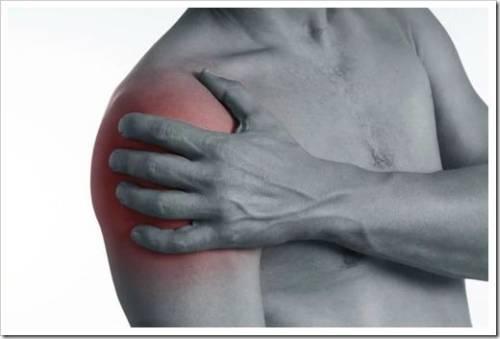 Заболевания, описывающие боли в плечевом суставе