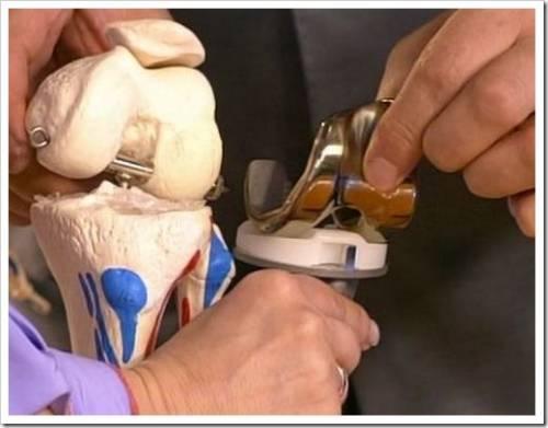 эндопротезирование коленного сустава чебоксары отзывы форум