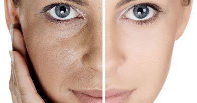 Как сузить поры на лице