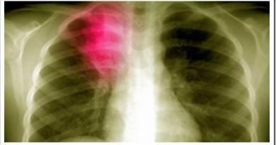 Пневмония легких и ее проявление