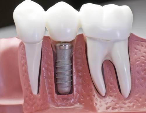 Как проходит имплантация зубов
