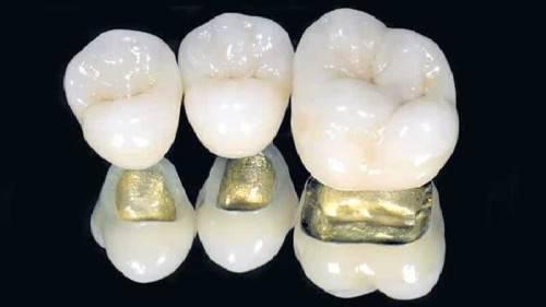 Какие бывают коронки на зубы