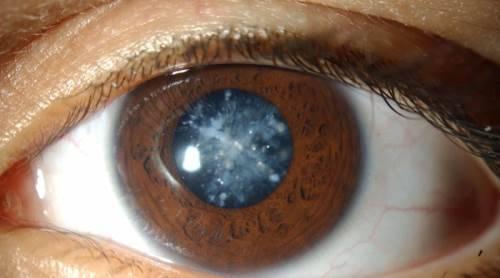 Глаукома - что это за болезнь