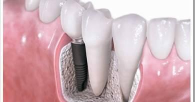 Противопоказания имплантации зубов