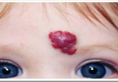 Преимущества и особенности удаления гемангиомы на лице лазером