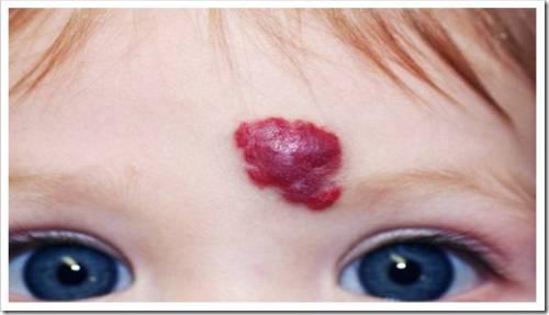 Удаление гемангиомы на лице лазером