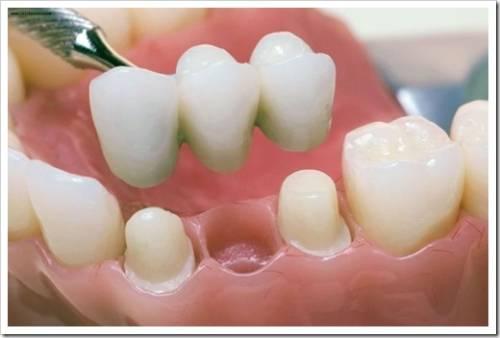 Лечебные протезы в стоматологии