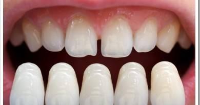 Что такое зубные виниры и как их ставят
