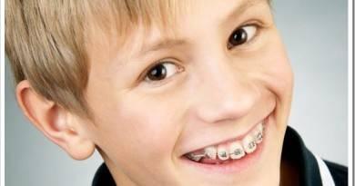 С какого возраста можно носить брекеты ребенку