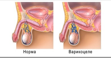 Виды оперативного лечения варикоцеле у мальчиков