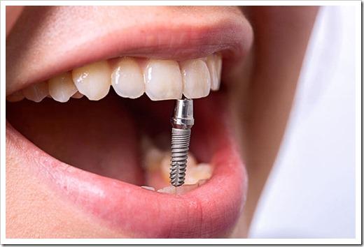 Из чего состоит современный зубной имплант