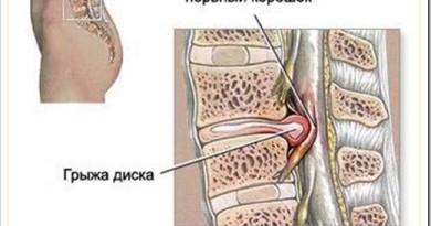 Какие упражнения делать при межпозвонковой грыже и как ее лечить