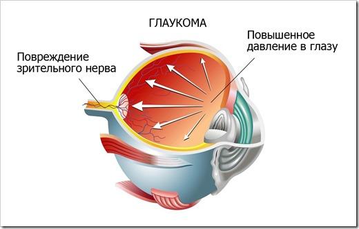 Глаукома, причины, симптоматика, разновидность