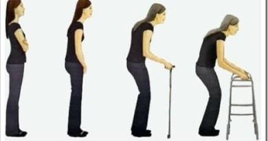 возрастные изменения суставов