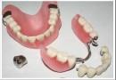Чем отличается протезирование от имплантации зубов