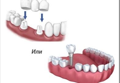 Имплантация зубов или протезирование — что выбрать