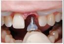Одномоментная имплантация зубов — что это и как происходит