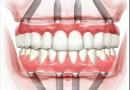 Как делается протезирование зубов по системе All-on-4