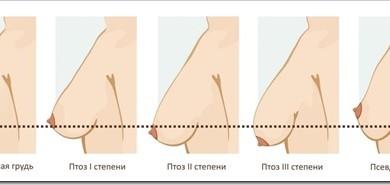 Что такое птоз и как он влияет на вид мастопексии?