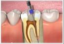 Как делается пломбирование каналов зубов