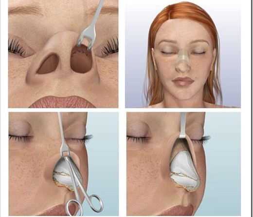 Классификация операций по пластике носа